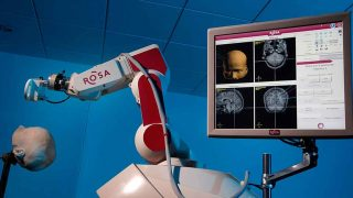 Neurocare November and their new ROSA robot machine.